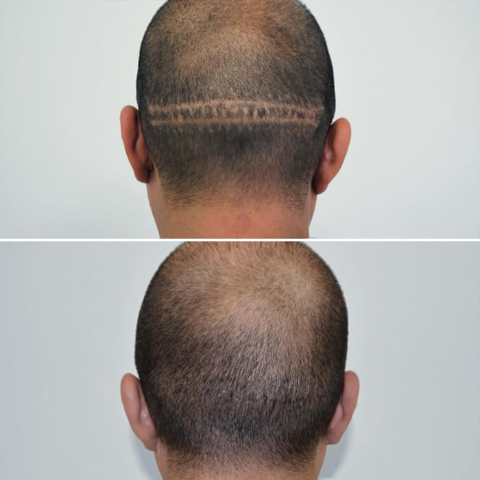 before and after picture of a man's scalp with amiea micropigmentation