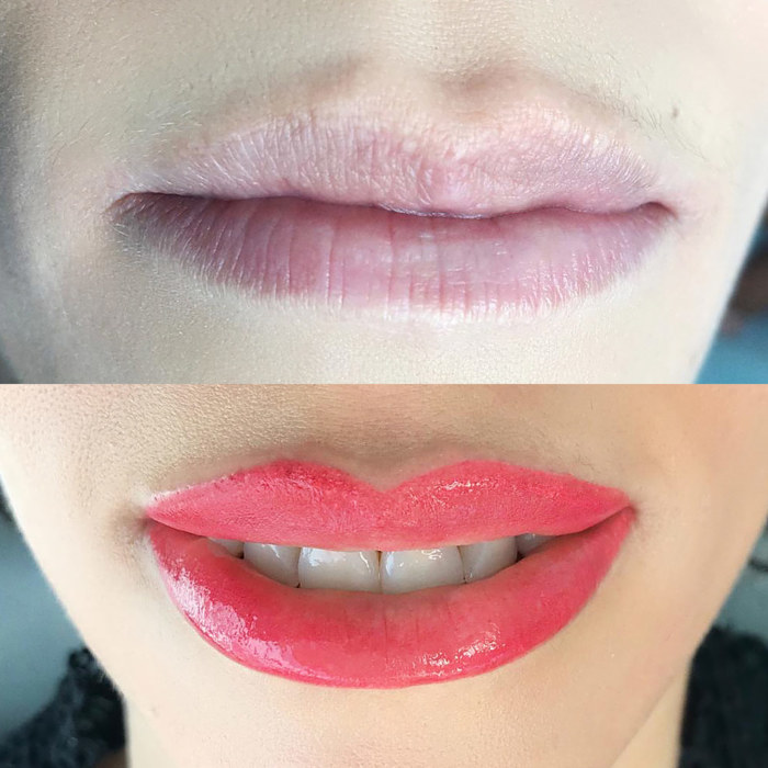lips with permanent makeup (PMU), example of lip treatment, comparison before and after