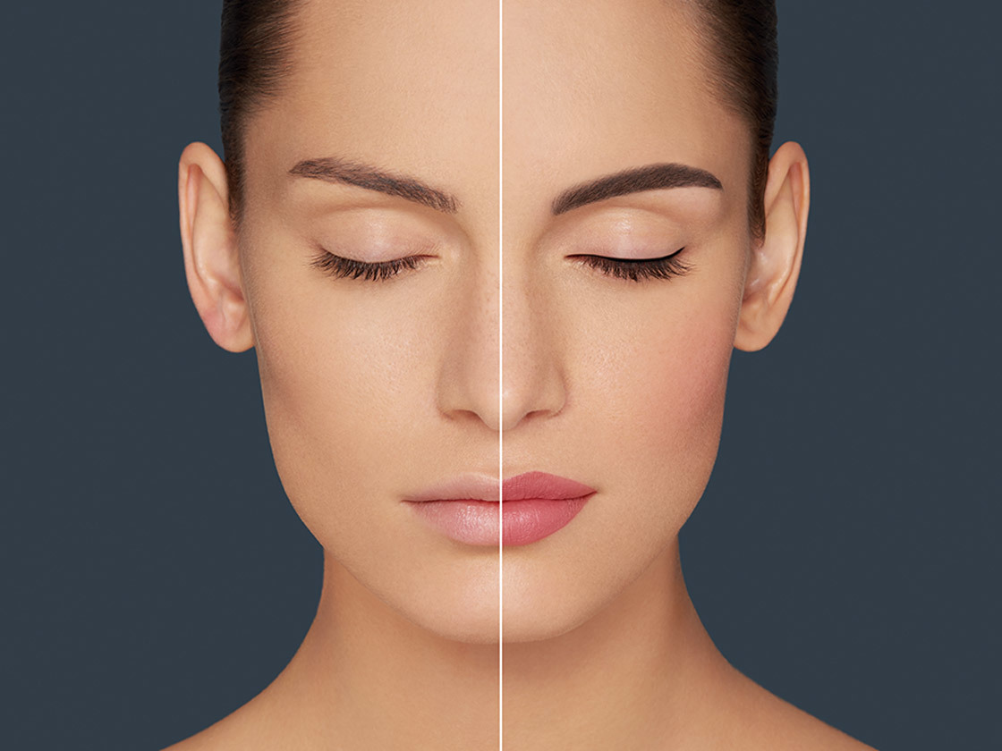 a before and after amiea permanent make up picture of a woman
